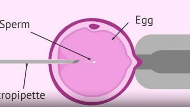 بارداری با میکرواینجکشن (ICSI)