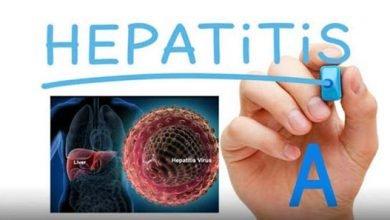 تصویر از هپاتیت A در بارداری