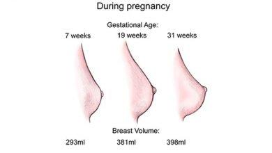 تغییرات پستان ها در دوران بارداری