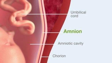 دلایل کاهش مایع آمنیوتیک یا آب دور جنین