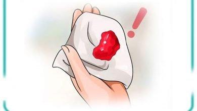 خونریزی در سه ماهه دوم و سوم دوران بارداری